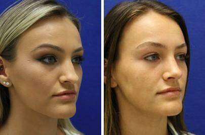 Nose Enhancement Before and After Photos in Lexington, KY, Patient 7020