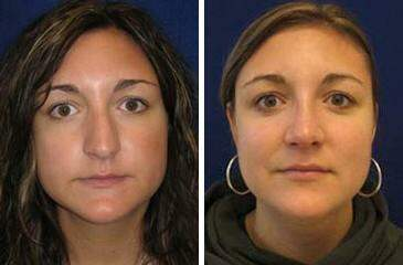 Nose Enhancement Before and After Photos in Lexington, KY, Patient 7090