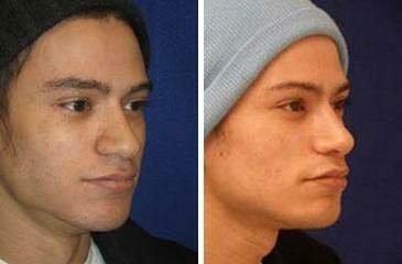 Nose Enhancement Before and After Photos in Lexington, KY, Patient 7110