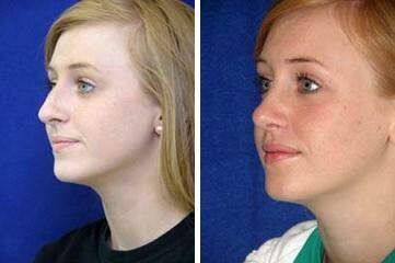 Nose Enhancement Before and After Photos in Lexington, KY, Patient 7120