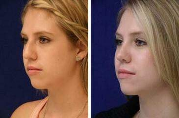 Nose Enhancement Before and After Photos in Lexington, KY, Patient 7130