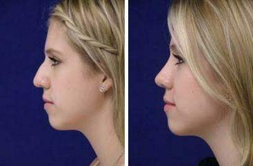 Nose Reshaping (Rhinoplasty) Before and After Photos in Lexington, KY, Patient 7130