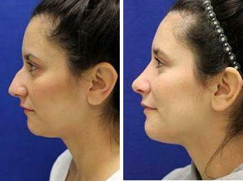 Nose Enhancement Before and After Photos in Lexington, KY, Patient 7150