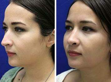 Nose Enhancement Before and After Photos in Lexington, KY, Patient 7160