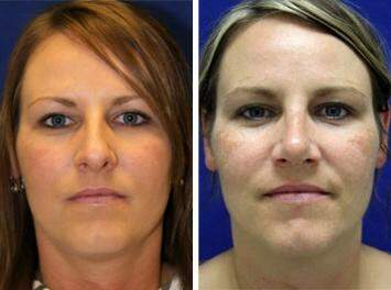 Nose Enhancement Before and After Photos in Lexington, KY, Patient 7170