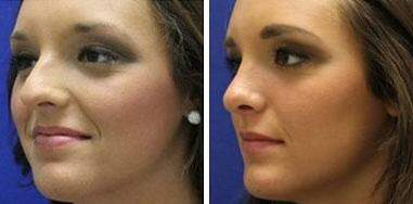 Nose Enhancement Before and After Photos in Lexington, KY, Patient 7180