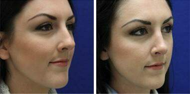 Nose Enhancement Before and After Photos in Lexington, KY, Patient 7190