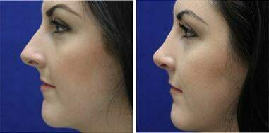 Nose Reshaping (Rhinoplasty) Before and After Photos in Lexington, KY, Patient 7190