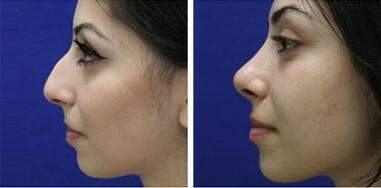 Nose Enhancement Before and After Photos in Lexington, KY, Patient 7200