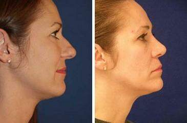 Nose Reshaping (Rhinoplasty) Before and After Photos in Lexington, KY, Patient 7040