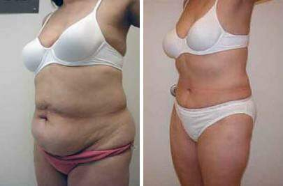 Tummy Tuck Before and After Photos in Lexington, KY, Patient 7380