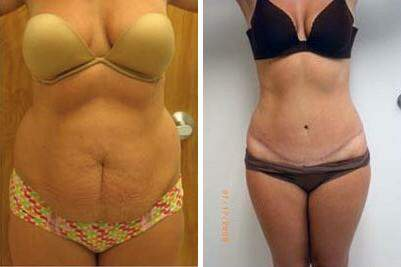 Tummy Tuck Before and After Photos in Lexington, KY, Patient 7390