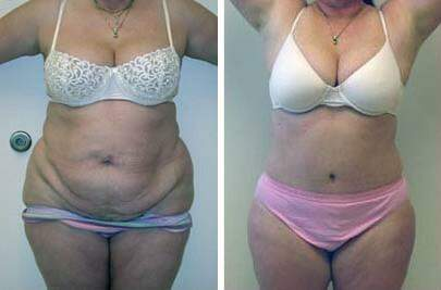 Tummy Tuck Before and After Photos in Lexington, KY, Patient 7400
