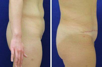 Tummy Tuck Before and After Photos in Lexington, KY, Patient 7350