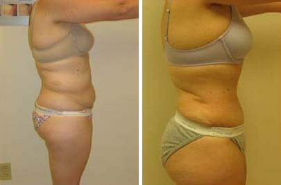 Tummy Tuck Before and After Photos in Lexington, KY, Patient 7460