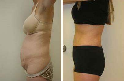 Tummy Tuck Before and After Photos in Lexington, KY, Patient 7470
