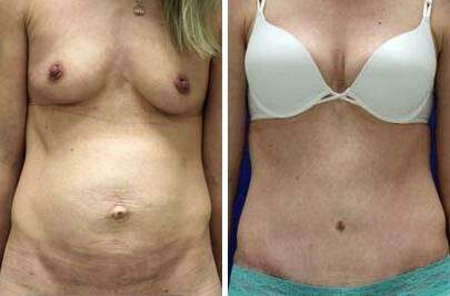 Tummy Tuck Before and After Photos in Lexington, KY, Patient 7484
