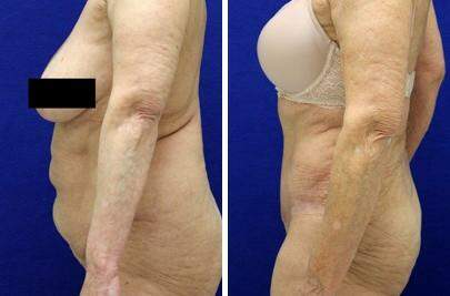 Tummy Tuck Before and After Photos in Lexington, KY, Patient 7514