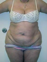 Tummy Tuck in Lexington, before photo - Patient 7400