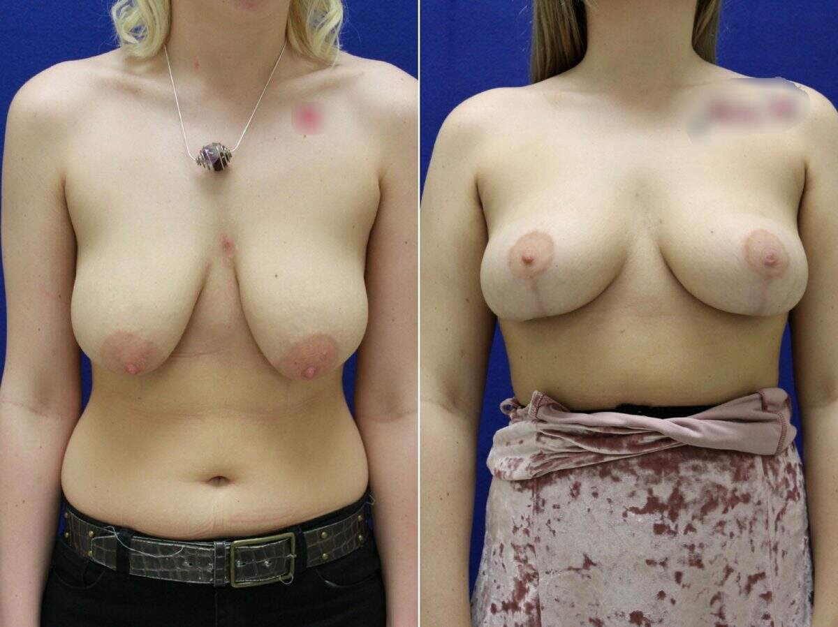 Breast Augmentation Before and After Photos in Lexington, KY, Patient 8686