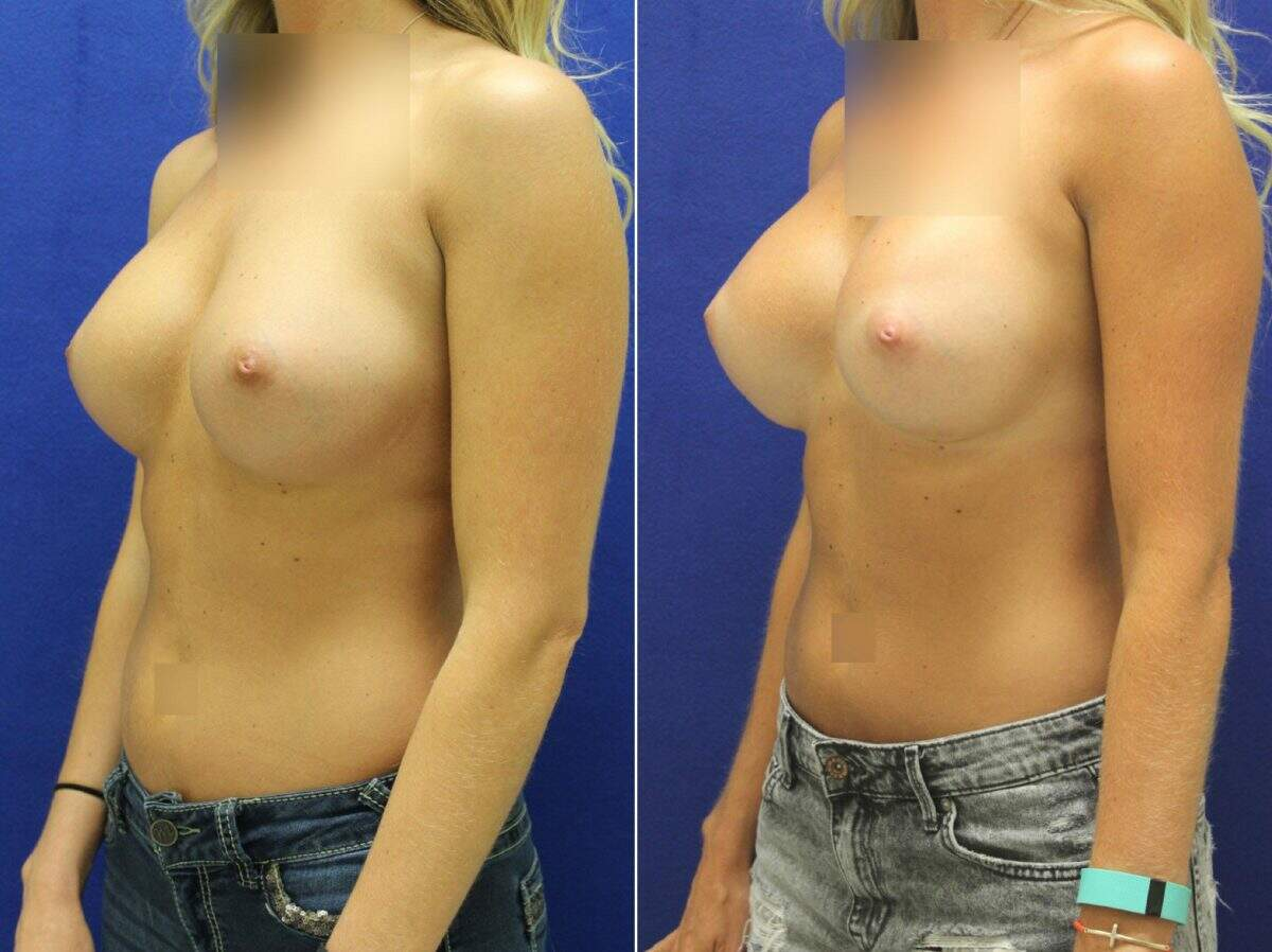 Breast Lift with Implants Before and After Photos in Lexington, KY, Patient 8800