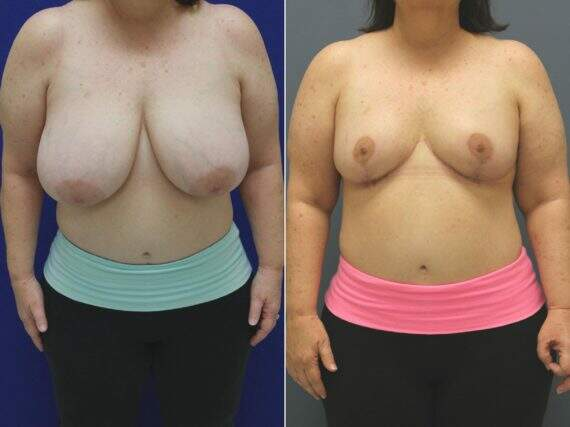 Breast Reduction Before and After Photos in Lexington, KY