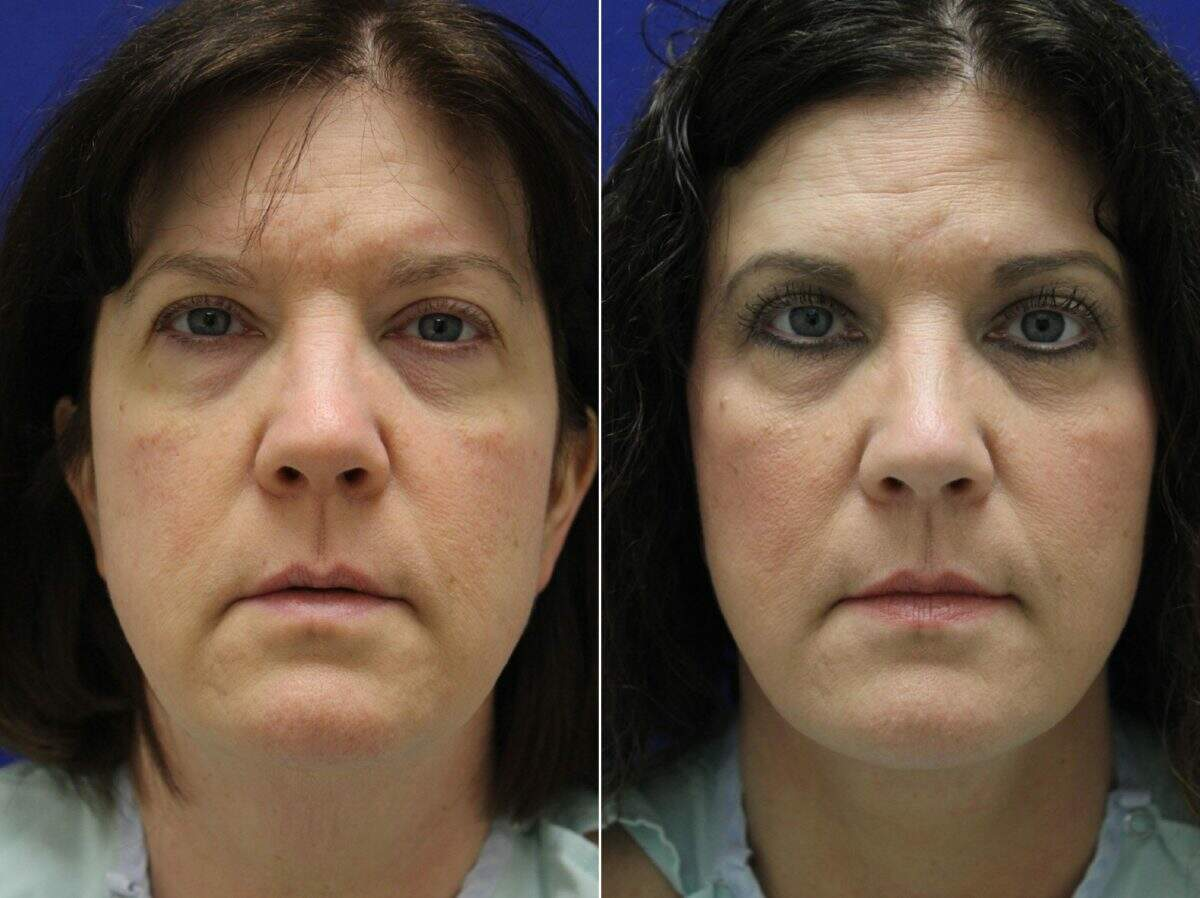 Facelift Before and After Photos in Lexington, KY, Patient 8714
