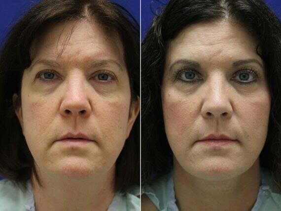 Facelift Before and After Photos in Lexington, KY