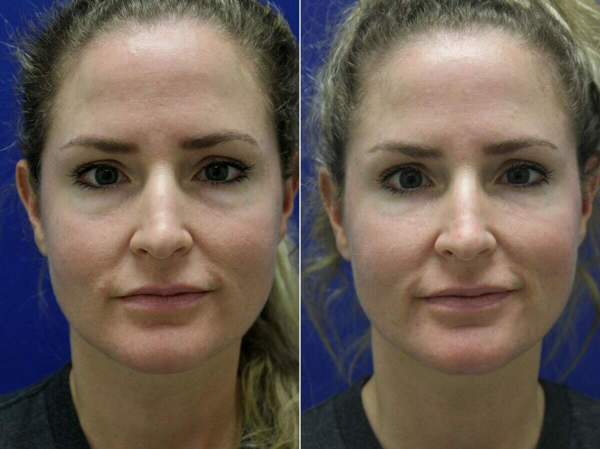 Injectable Fillers Before and After Photos in Lexington, KY, Patient 8709