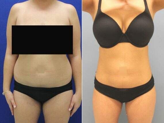 Liposuction Before and After Photos in Lexington, KY