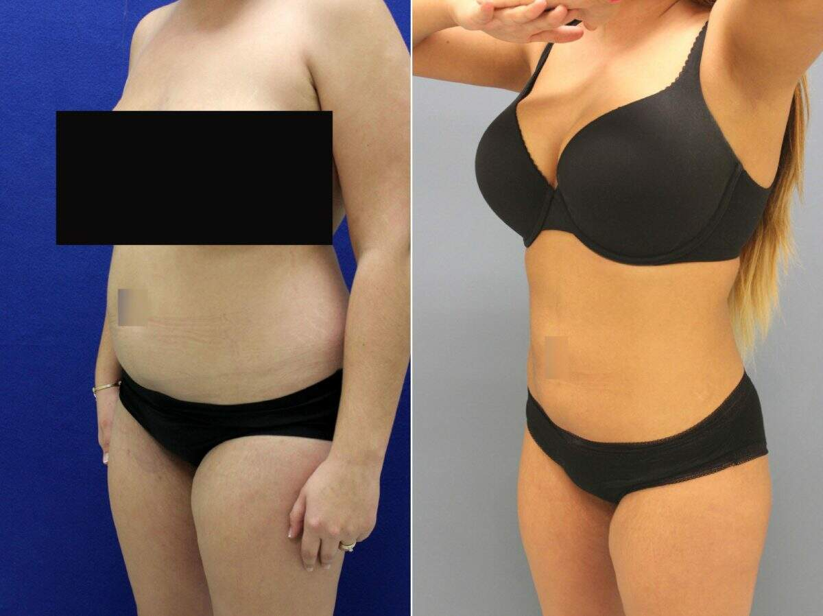 Liposuction Before and After Photos in Lexington, KY, Patient 8646