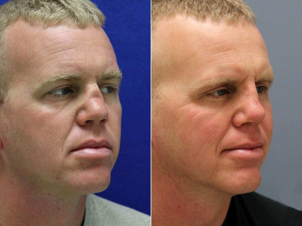 Nose Enhancement Before and After Photos in Lexington, KY, Patient 8666