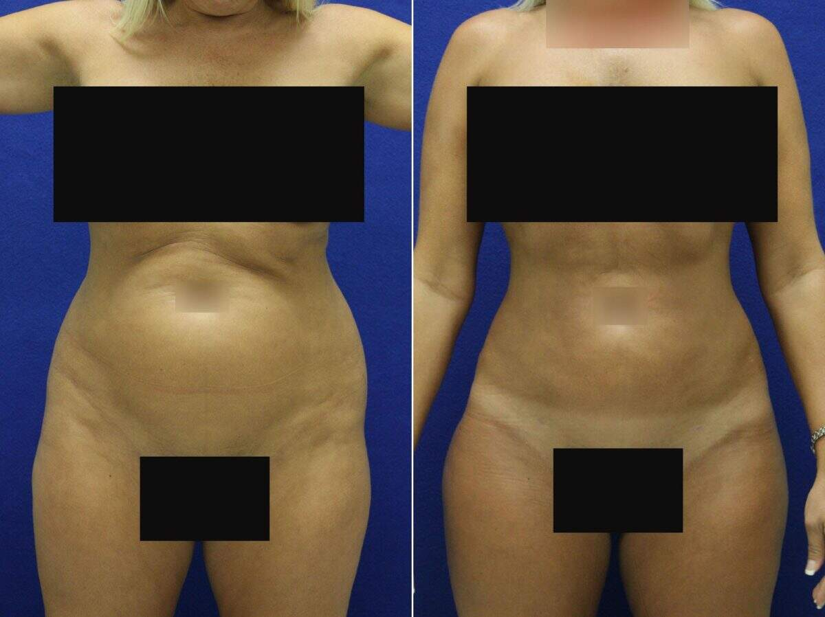 Liposuction Before and After Photos in Lexington, KY, Patient 8696