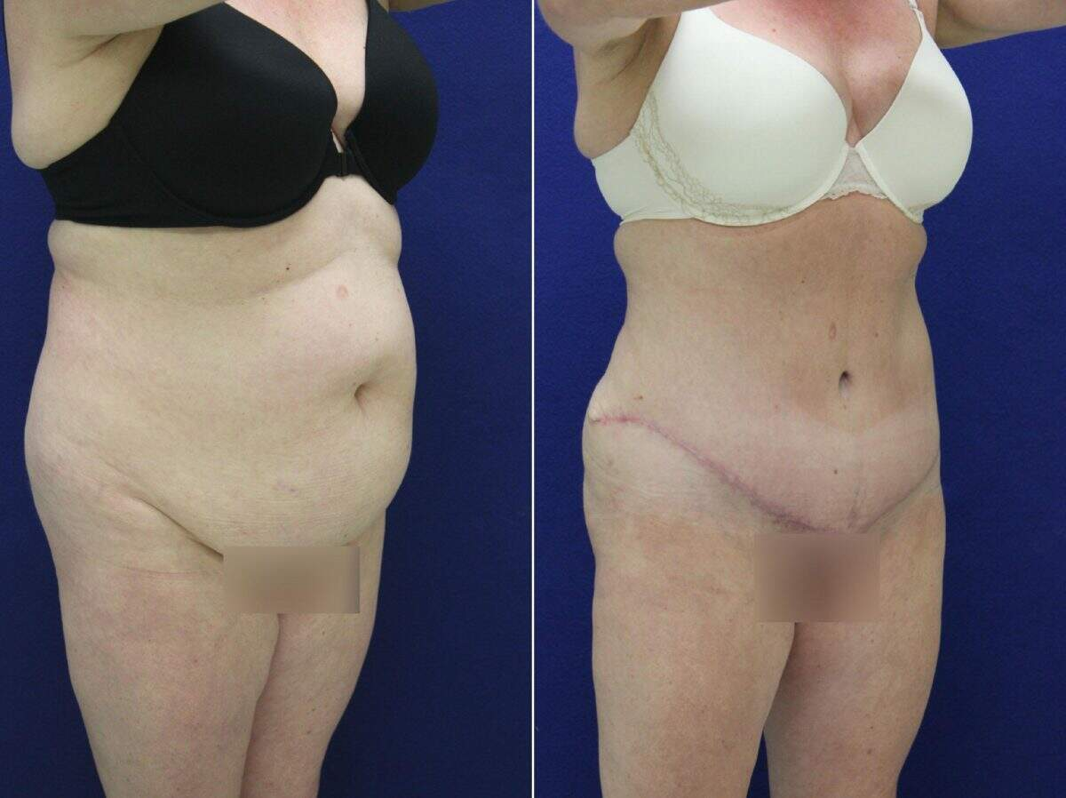 Tummy Tuck Before and After Photos in Lexington, KY, Patient 8767