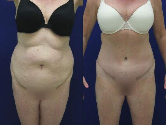Tummy Tuck Before and After Photos in Lexington, KY