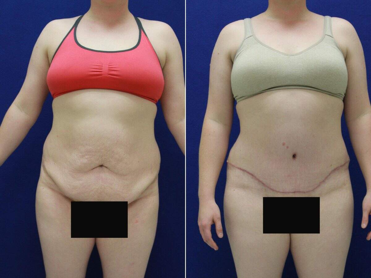 Tummy Tuck Before and After Photos in Lexington, KY, Patient 8656