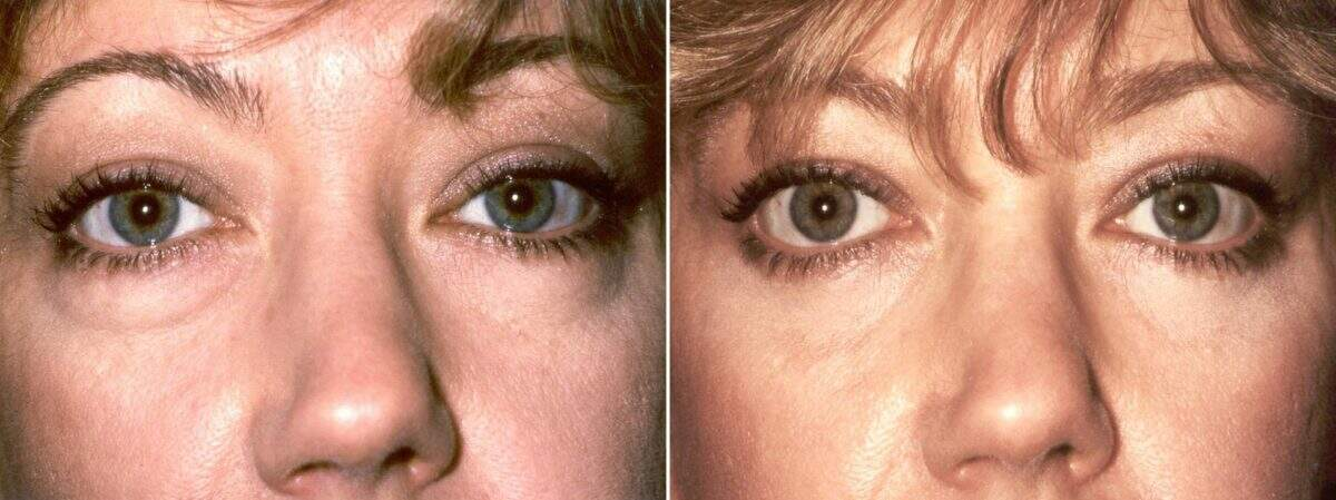Lower Blepharoplasty Before and After Photos in Lexington, KY, Patient 8891