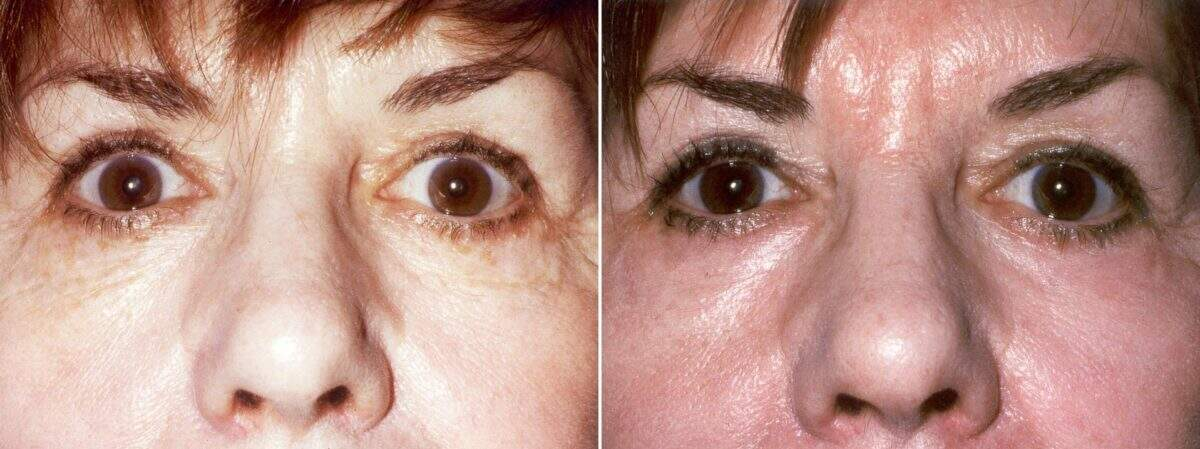 Lower Blepharoplasty Before and After Photos in Lexington, KY, Patient 8927