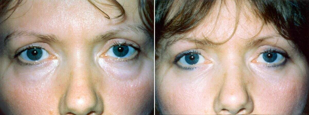 Lower Blepharoplasty Before and After Photos in Lexington, KY, Patient 8885
