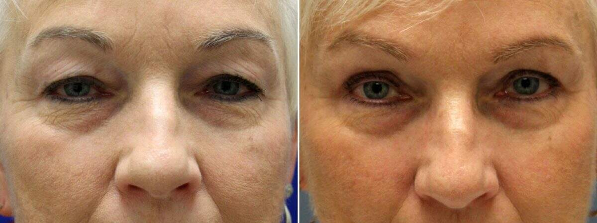 Upper & Lower Blepharoplasty Before and After Photos in Lexington, KY, Patient 9074