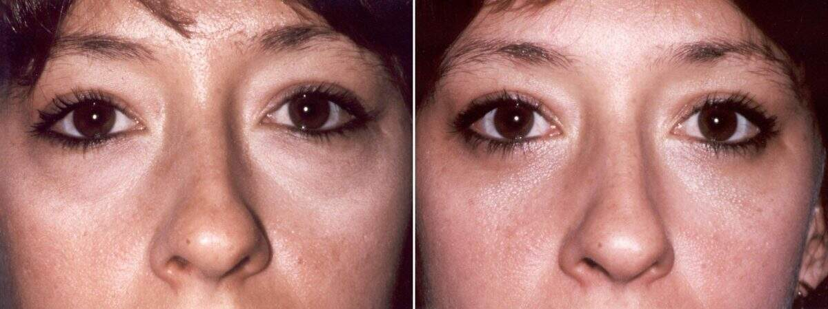 Lower Blepharoplasty Before and After Photos in Lexington, KY, Patient 8895