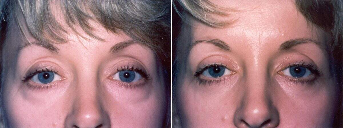 Lower Blepharoplasty Before and After Photos in Lexington, KY, Patient 8899
