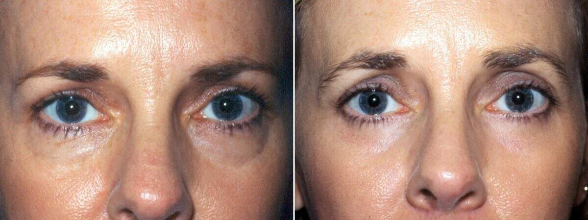 Lower Blepharoplasty Before and After Photos in Lexington, KY, Patient 8907