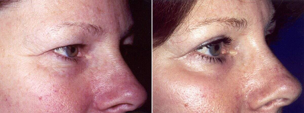 Upper & Lower Blepharoplasty Before and After Photos in Lexington, KY, Patient 8911
