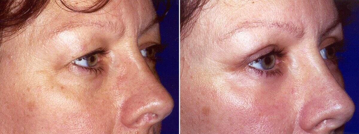 Upper Blepharoplasty Before and After Photos in Lexington, KY, Patient 8915