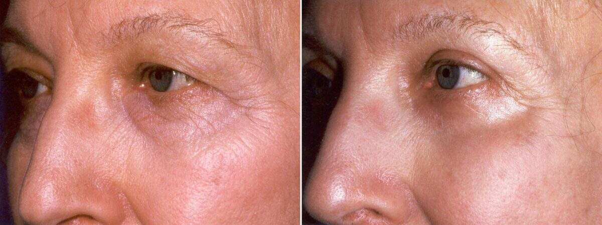 Upper & Lower Blepharoplasty Before and After Photos in Lexington, KY, Patient 8923
