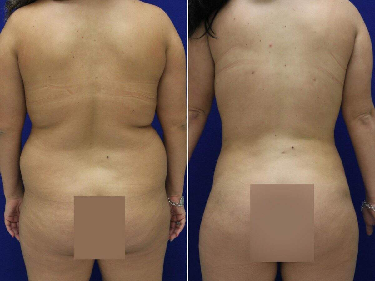 Liposuction Before and After Photos in Lexington, KY, Patient 9001