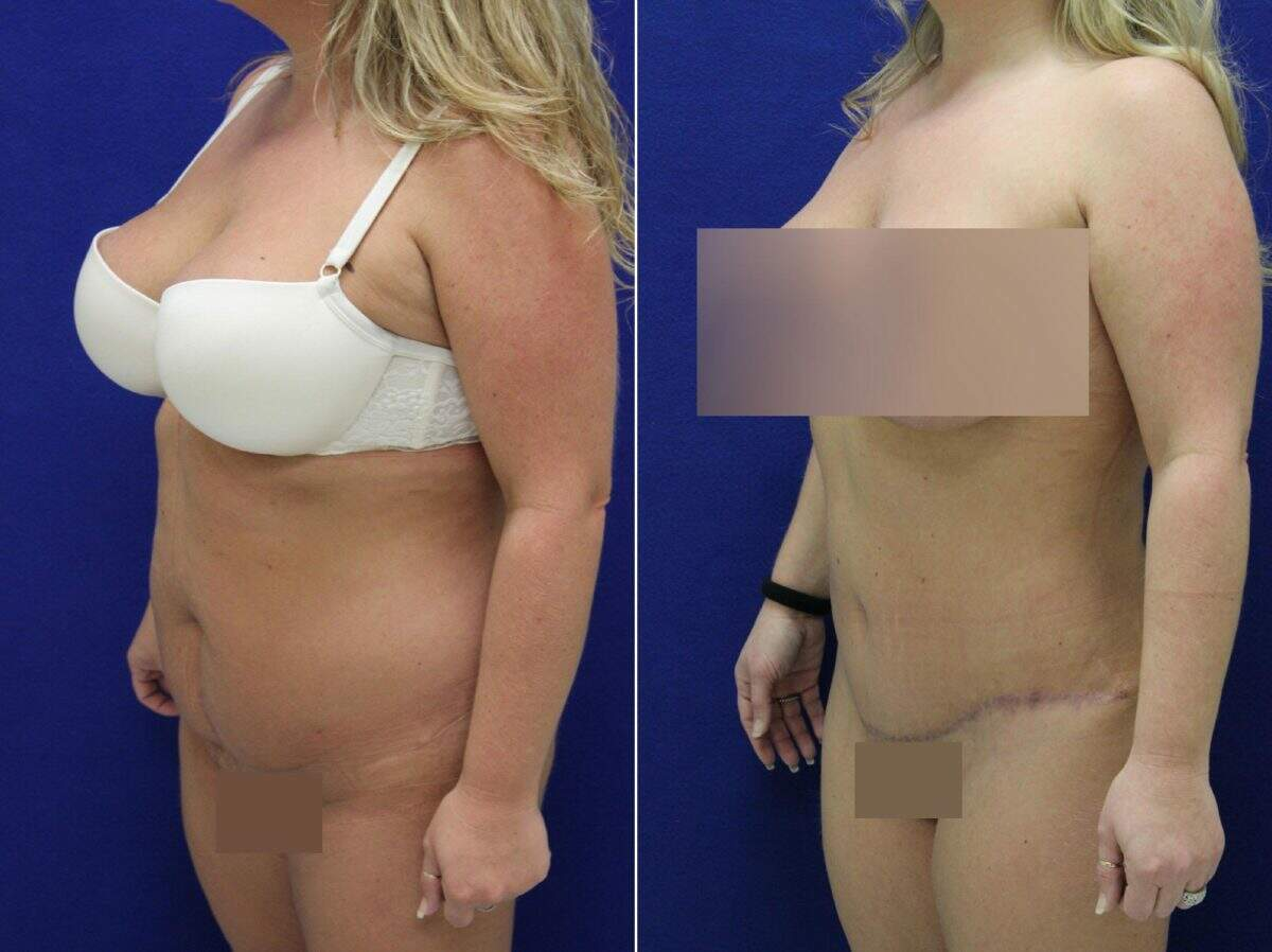 Tummy Tuck Before and After Photos in Lexington, KY, Patient 8974