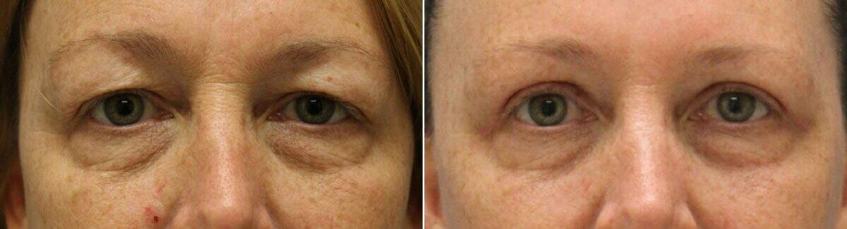 Upper & Lower Blepharoplasty Before and After Photos in Lexington, KY, Patient 9064