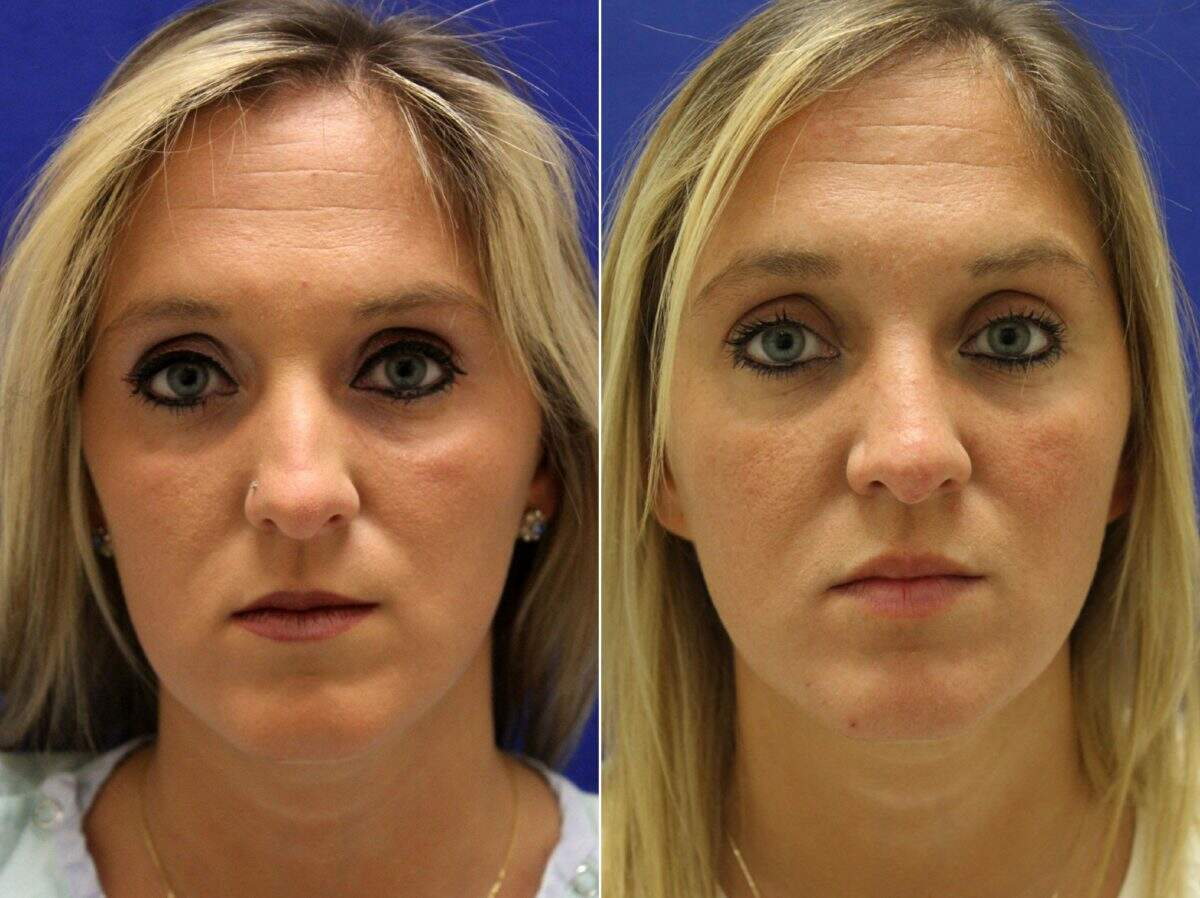 Nose Reshaping (Rhinoplasty) Before and After Photos in Lexington, KY, Patient 9123